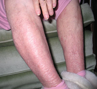 legs after avoiding tap water